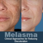 Melasma: Clinical Approaches for Reducing Discoloration